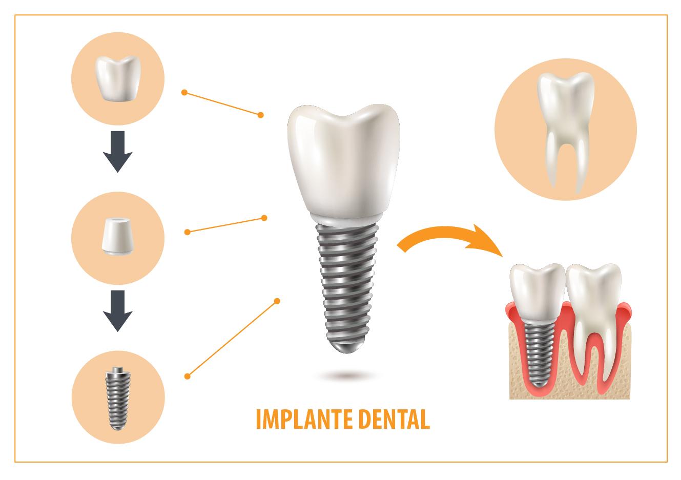 I-Denta - Gráfica